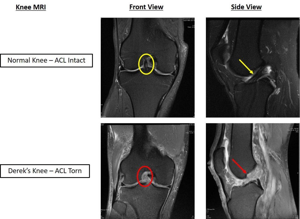 xray of blown knee